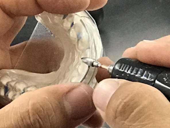 To increase Lateral Excursion, simply remove the acrylic between the engagement wire and the reinforcing wire.