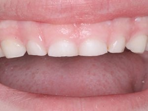 Short teeth and retention issues